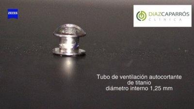 Tubo autocortante de titanio y el agua