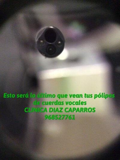 endoscopio, láser, celf